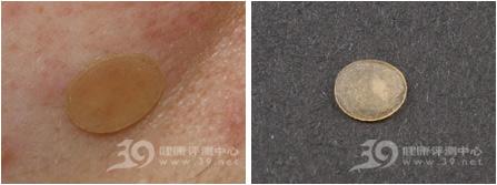 3M 耐适康隐形痘痘贴评测