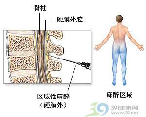 剖腹产手术图解