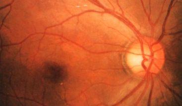 右眼视乳头色素弧
