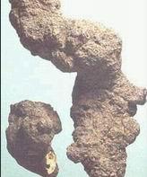 �i苓(利尿�B�瘢�